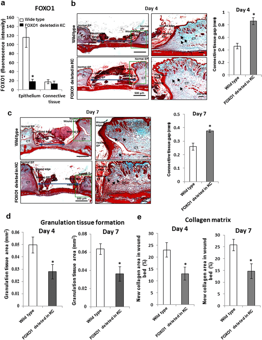medium resolution of keratinocyte specific deletion of foxo1 impairs connective tissue healing in dermal wounds dermal wounds