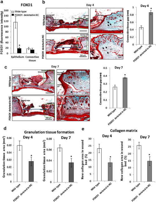 small resolution of keratinocyte specific deletion of foxo1 impairs connective tissue healing in dermal wounds dermal wounds