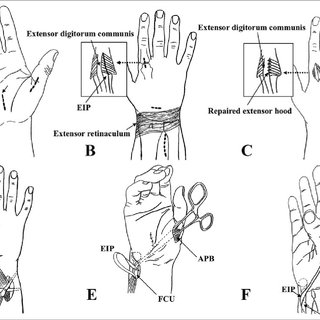 (PDF) Immediate Thumb Opposition Following Extensor
