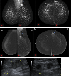 35 years old complaining of left breast axillary tail lump a d ffdm [ 850 x 1014 Pixel ]