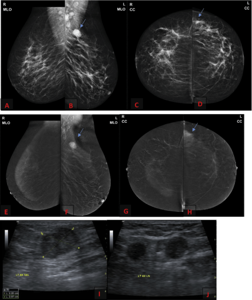 small resolution of 35 years old complaining of left breast axillary tail lump a d ffdm