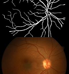 top eye fundus color image with blood vessels database diaretdb1 v1  [ 750 x 1152 Pixel ]