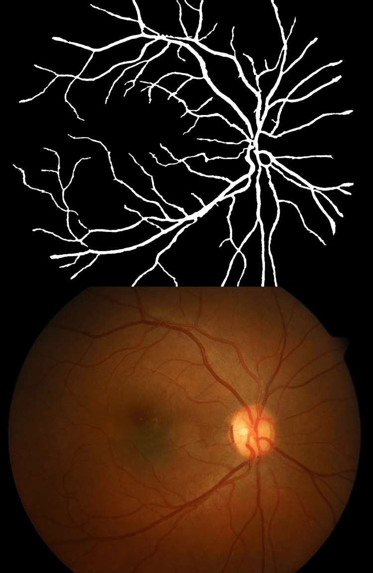 hight resolution of top eye fundus color image with blood vessels database diaretdb1 v1