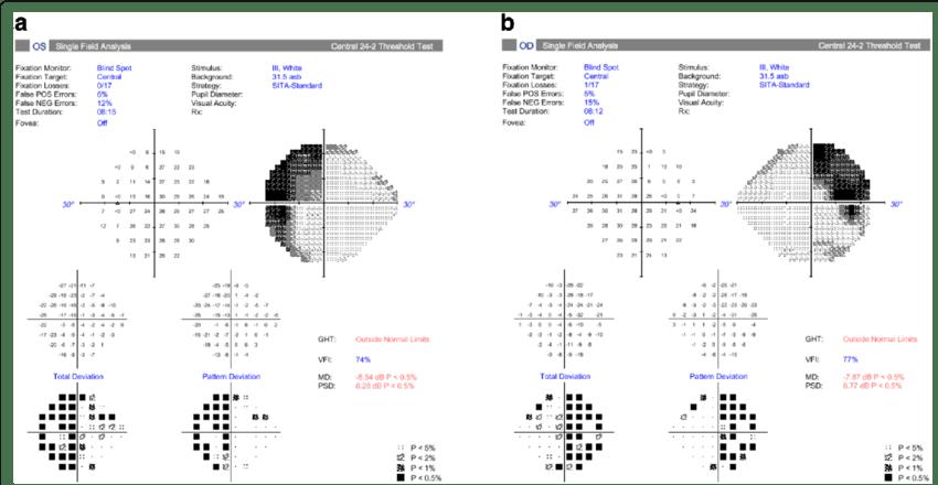 Humphrey 24–2 SITA-Standard visual field test result for