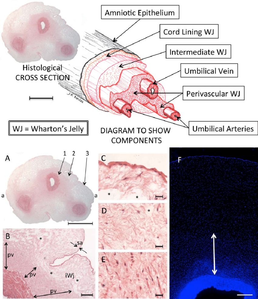 hight resolution of above the structure of the human umbilical cord with a three dimensional exploded diagram