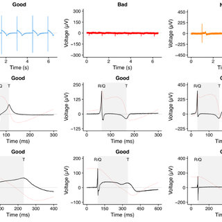 Disease-or Drug-induced QT and RR Interval Variations. (A
