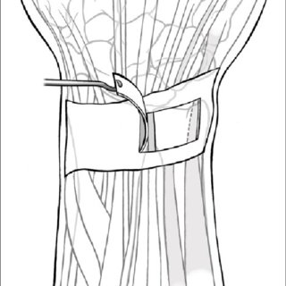(PDF) Modification of the use of the extensor retinaculum