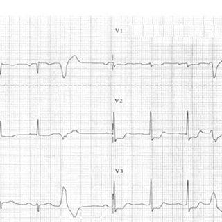 Posterior acute myocardial infarction (AMI). Anteroseptal