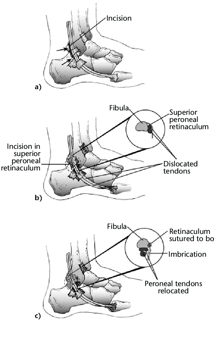 Surgical repair of acute peroneal tendon dislocation. a