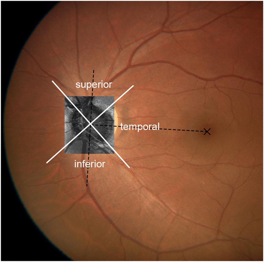 diagram of the left eye dog bone schematic 3 measurement regions in a download scientific