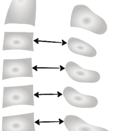 measurement of the spinal canal diameter at the cervical spinal column  [ 850 x 1535 Pixel ]