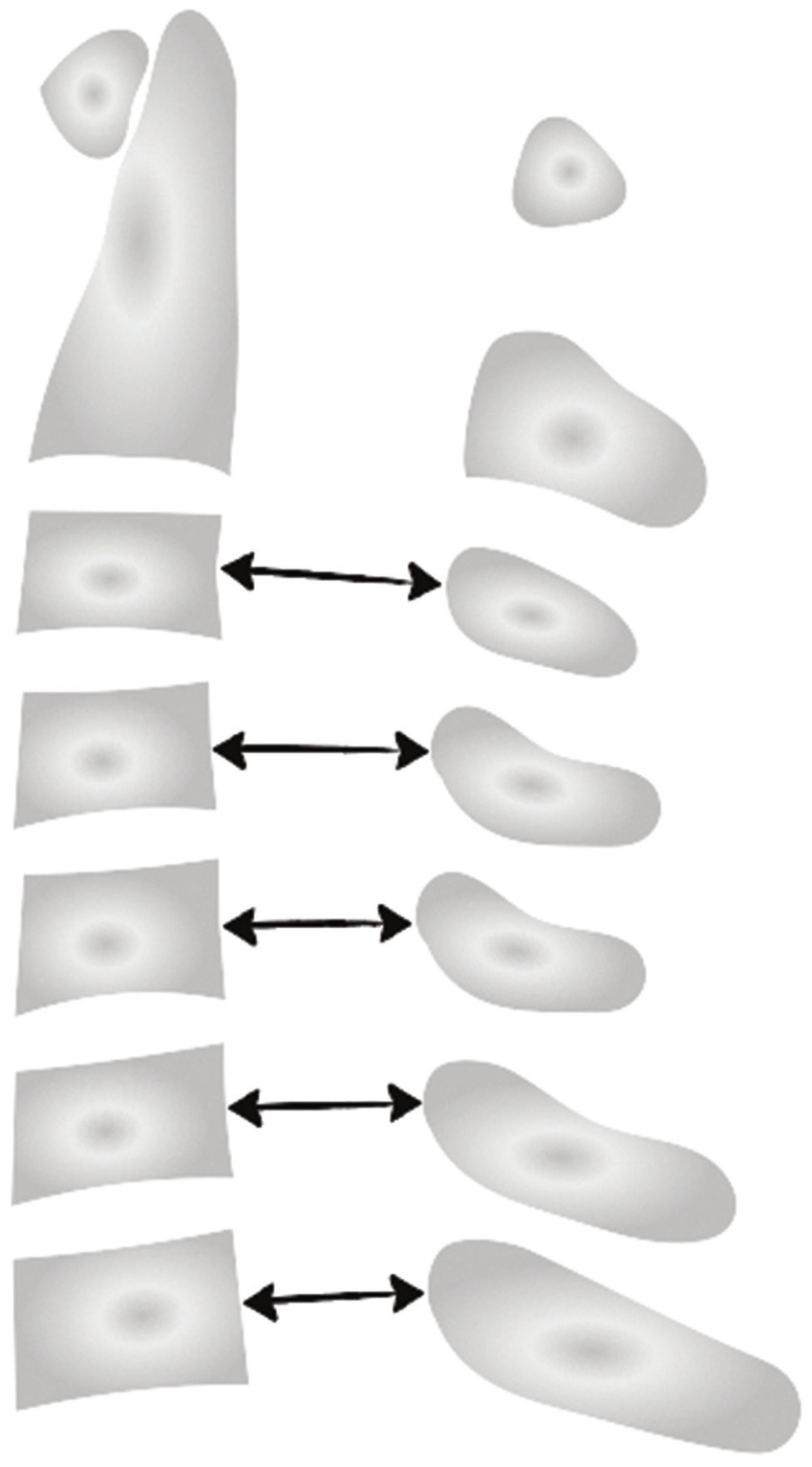 hight resolution of measurement of the spinal canal diameter at the cervical spinal column