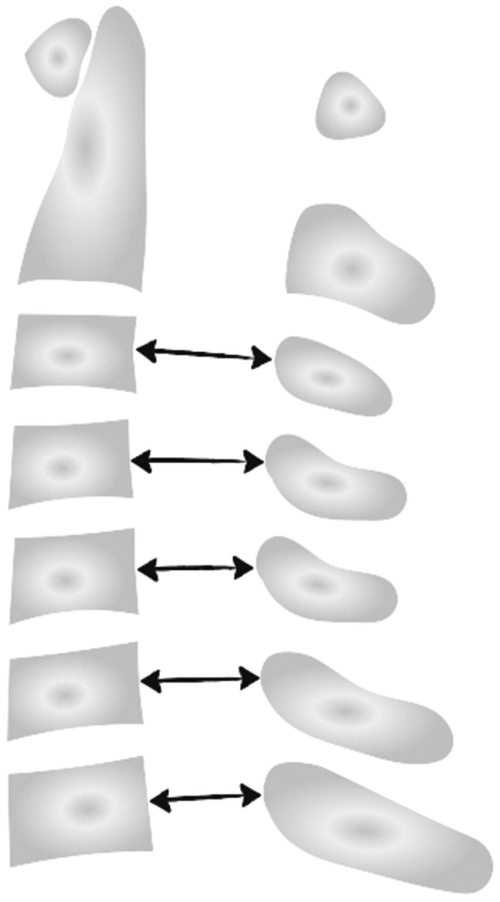 small resolution of measurement of the spinal canal diameter at the cervical spinal column