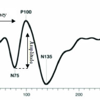Sample visual evoked potential (VEP) waveform recorded in