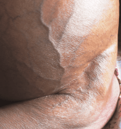 dilated superficial veins in lower abdomen with upward flow in a patient with chronic hvcs who [ 850 x 1222 Pixel ]