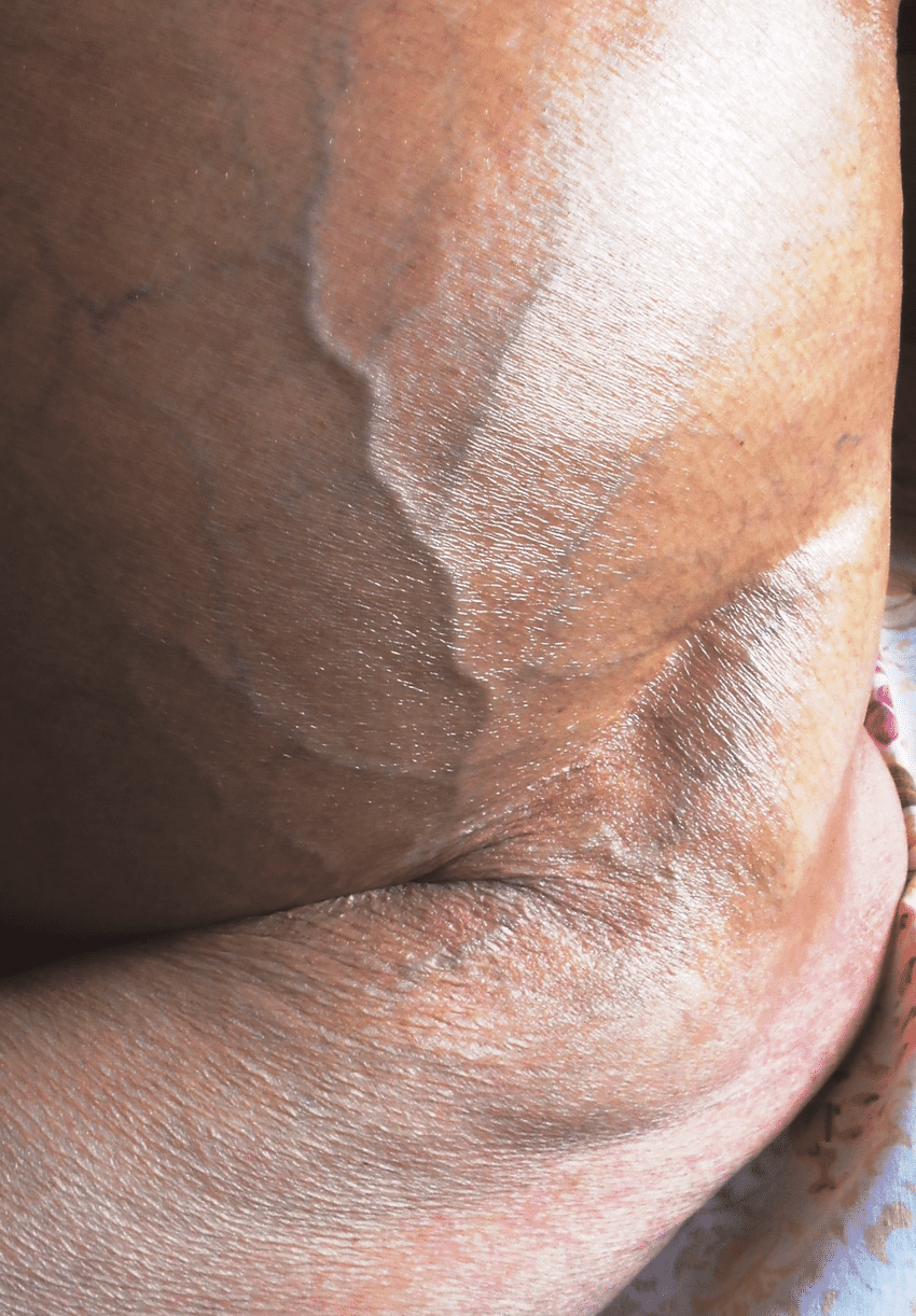 hight resolution of dilated superficial veins in lower abdomen with upward flow in a patient with chronic hvcs who