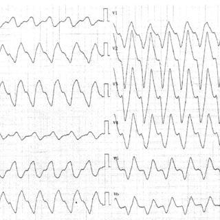 ECG following resolution of hyperkalemia, with first