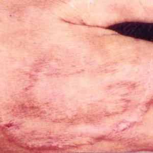 Tinae barbae Fig 8: Tinea faciei (Ringworm of beard and