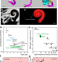 spatial relations of the cochlea to surrounding structures that influence the cochlear shape a [ 850 x 1243 Pixel ]