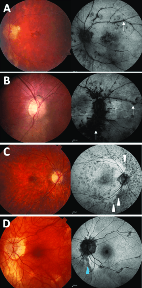 small resolution of fundus photographs and autofluorescence images showing fundus download scientific diagram