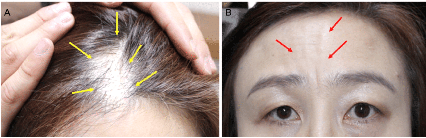 Clinical photographs showing alopecia and linear ...