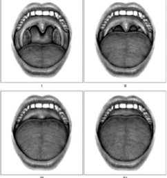 grade i allows the observer to visualize the entire uvula and tonsils grade ii allows visualization of the uvula bot not the tonsils  [ 850 x 928 Pixel ]