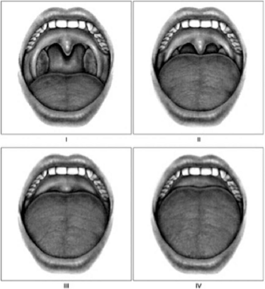 hight resolution of grade i allows the observer to visualize the entire uvula and tonsils grade ii allows visualization of the uvula bot not the tonsils