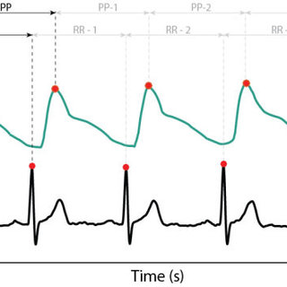 (PDF) Clinical Validation of Heart Rate Apps: Mixed