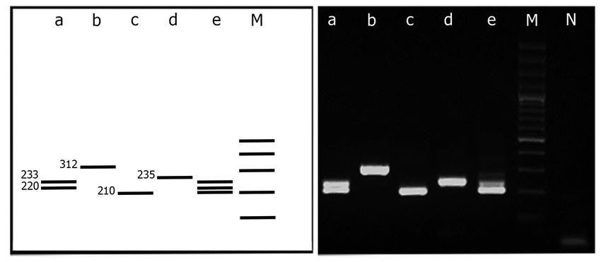 Agarose gel electrophoresis showing different banding