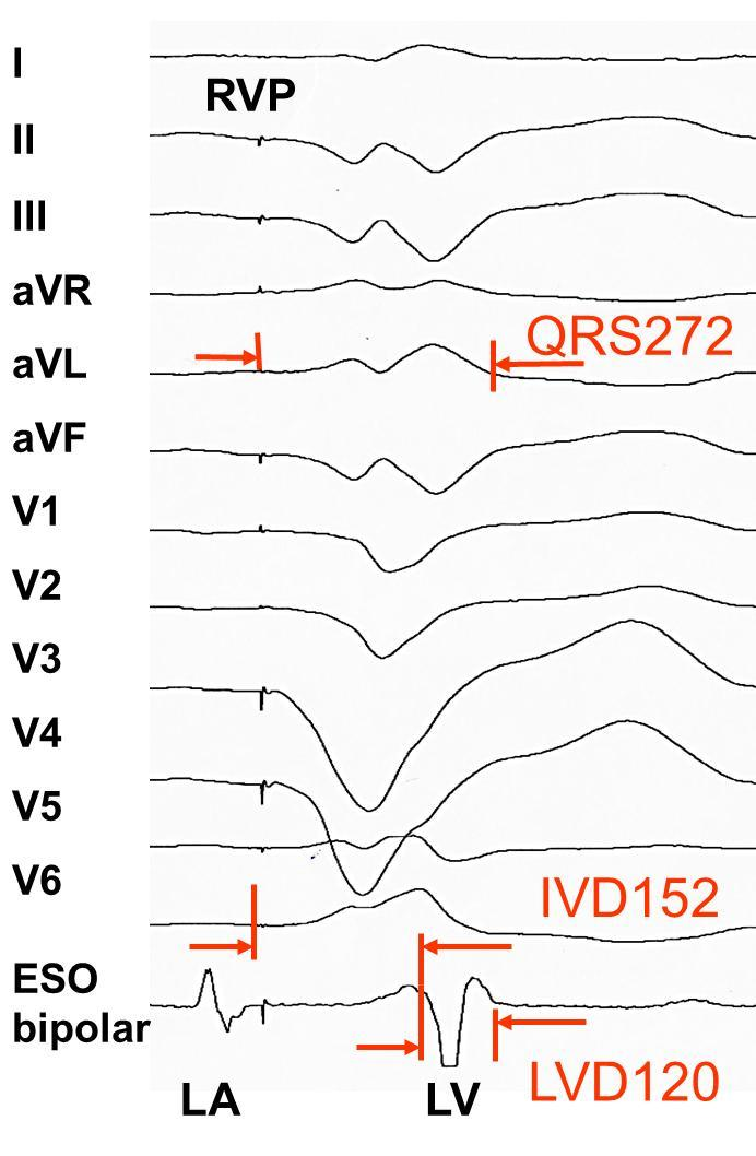 Right ventricular pacing with transesophageal
