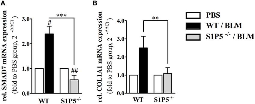 | S1P5 impacts on SMAD7 and COL1A1 mRNA expression