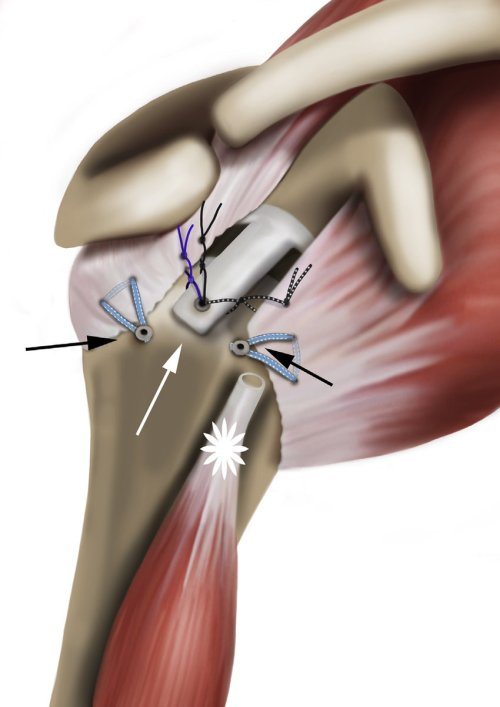 small resolution of final construct of superior capsular reconstruction using autologous long head of biceps tendon lhbt