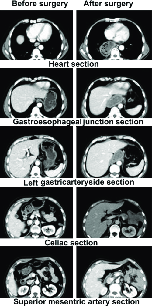 small resolution of ct images of the inferior mediastinum and epigastrium before and after the radical surgery