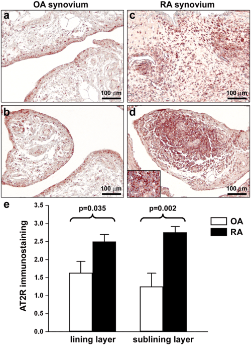 small resolution of expression of angiotensin ii type 2 receptor at2r in synovial tissue from patients with