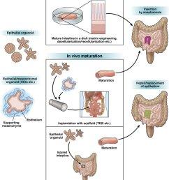 schematic illustration of intestinal tissue engineering and regenerative medicine based on organoid technology combining organoid [ 850 x 1009 Pixel ]