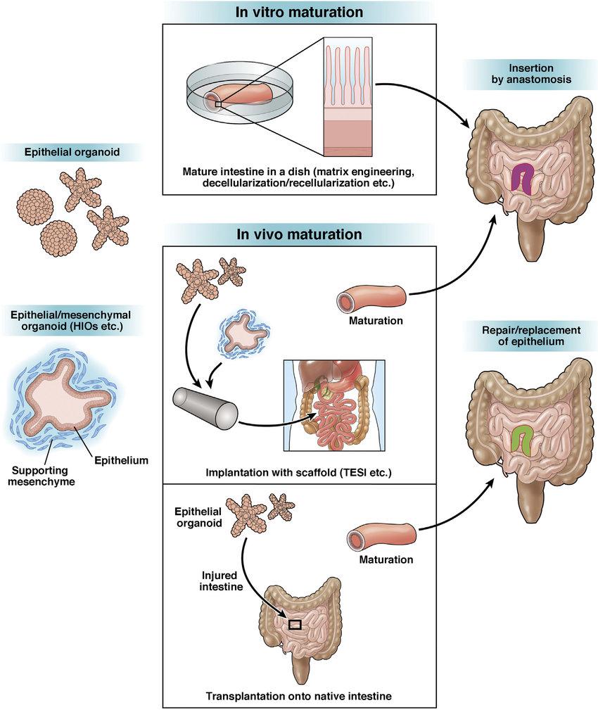 hight resolution of schematic illustration of intestinal tissue engineering and regenerative medicine based on organoid technology combining organoid
