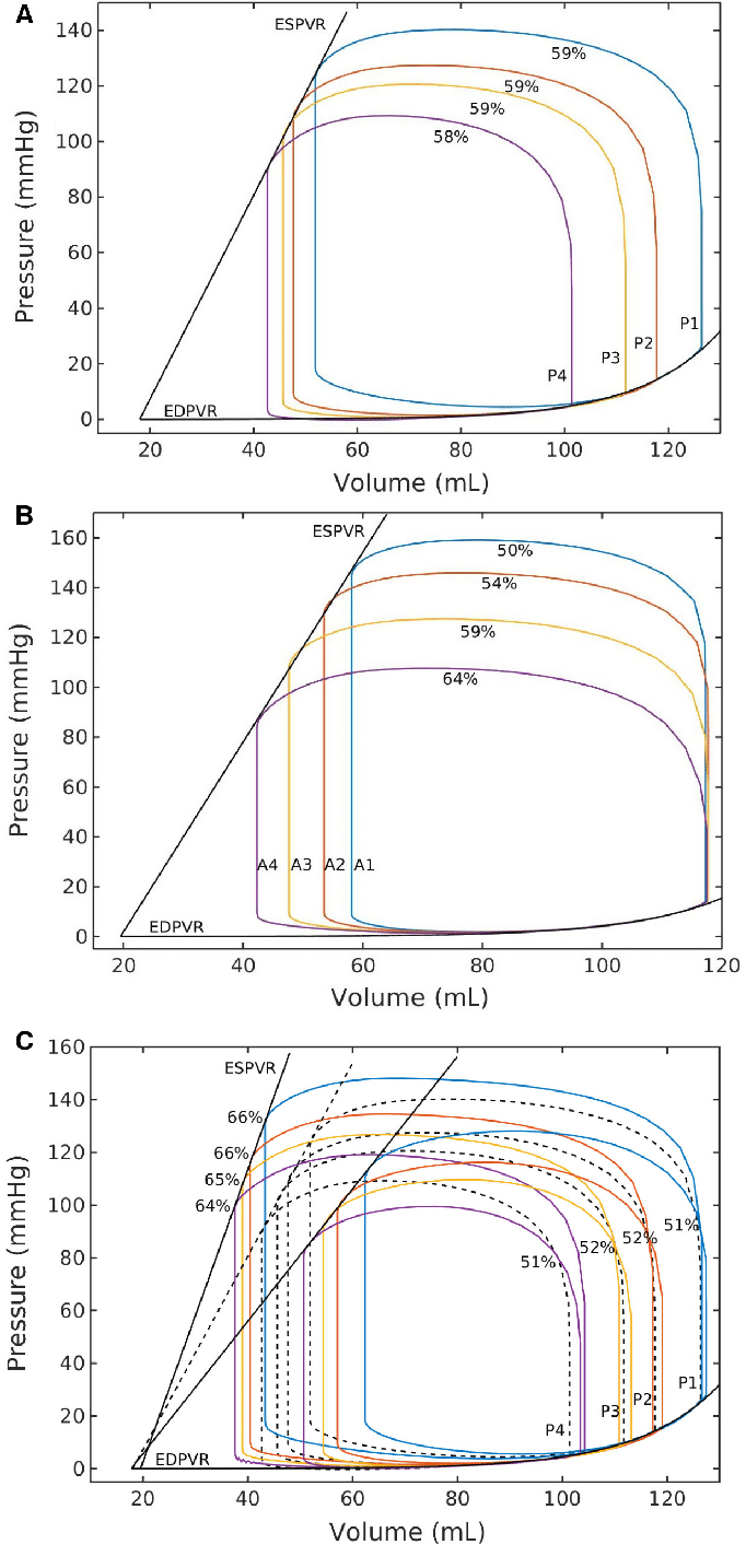 hight resolution of effects on pressure volume loop by due to a change in a preload at a download scientific diagram