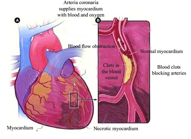 Schematic Diagram Of Acute Myocardial Infarction