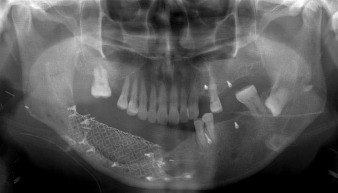 Fish Bone Diagram Free Download Wiring Diagrams Pictures Wiring