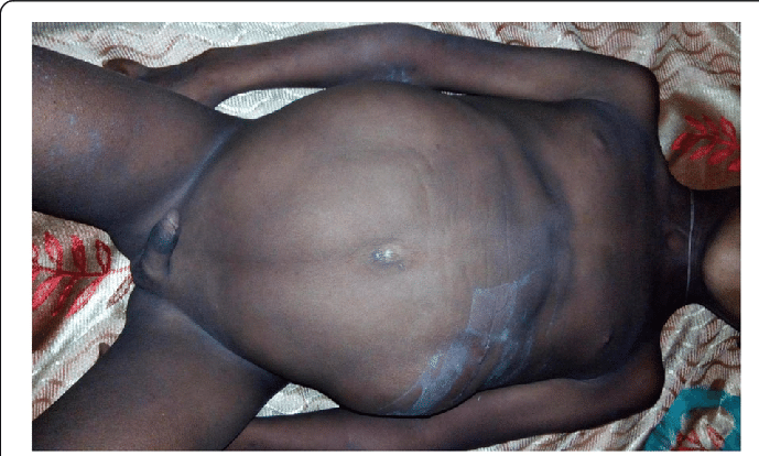 A 12-year-old boy with prune belly syndrome with empty ...