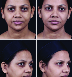 indian woman before a and after b full face combination treatment with botulinum toxin and ha fillers courtesy of dr vandana chatrath  [ 850 x 1250 Pixel ]