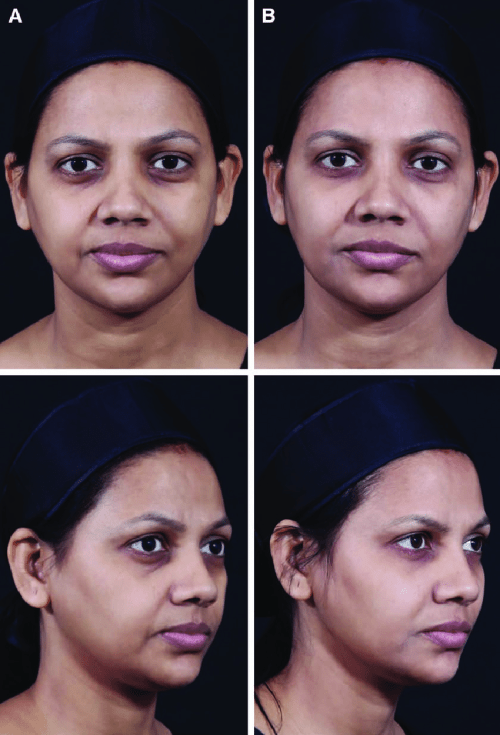 small resolution of indian woman before a and after b full face combination treatment with botulinum toxin and ha fillers courtesy of dr vandana chatrath