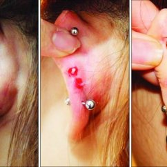 Cartilage Piercing Diagram Electrical Installation Wiring Diagrams And Symbols Perichondritis After High Ear Result One Week Local Infection With Granuloma Helix Surgical Excision Of