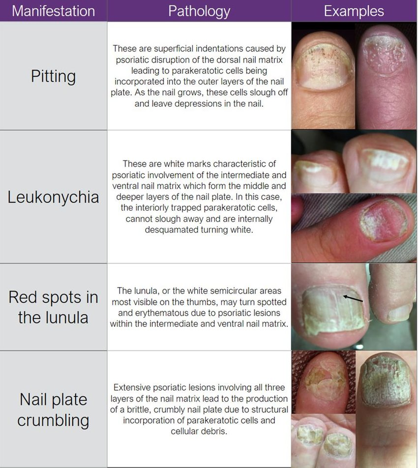 hight resolution of nail matrix psoriatic manifestations visible on the nail plate 12