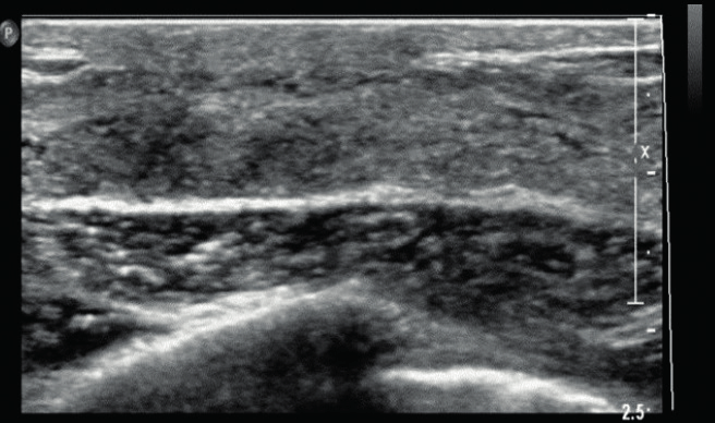Homogenous background echotexture-fibroglandular. Transverse ultrasound... | Download Scientific Diagram