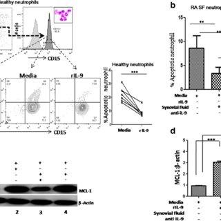 (PDF) Synovial IL-9 facilitates neutrophil survival