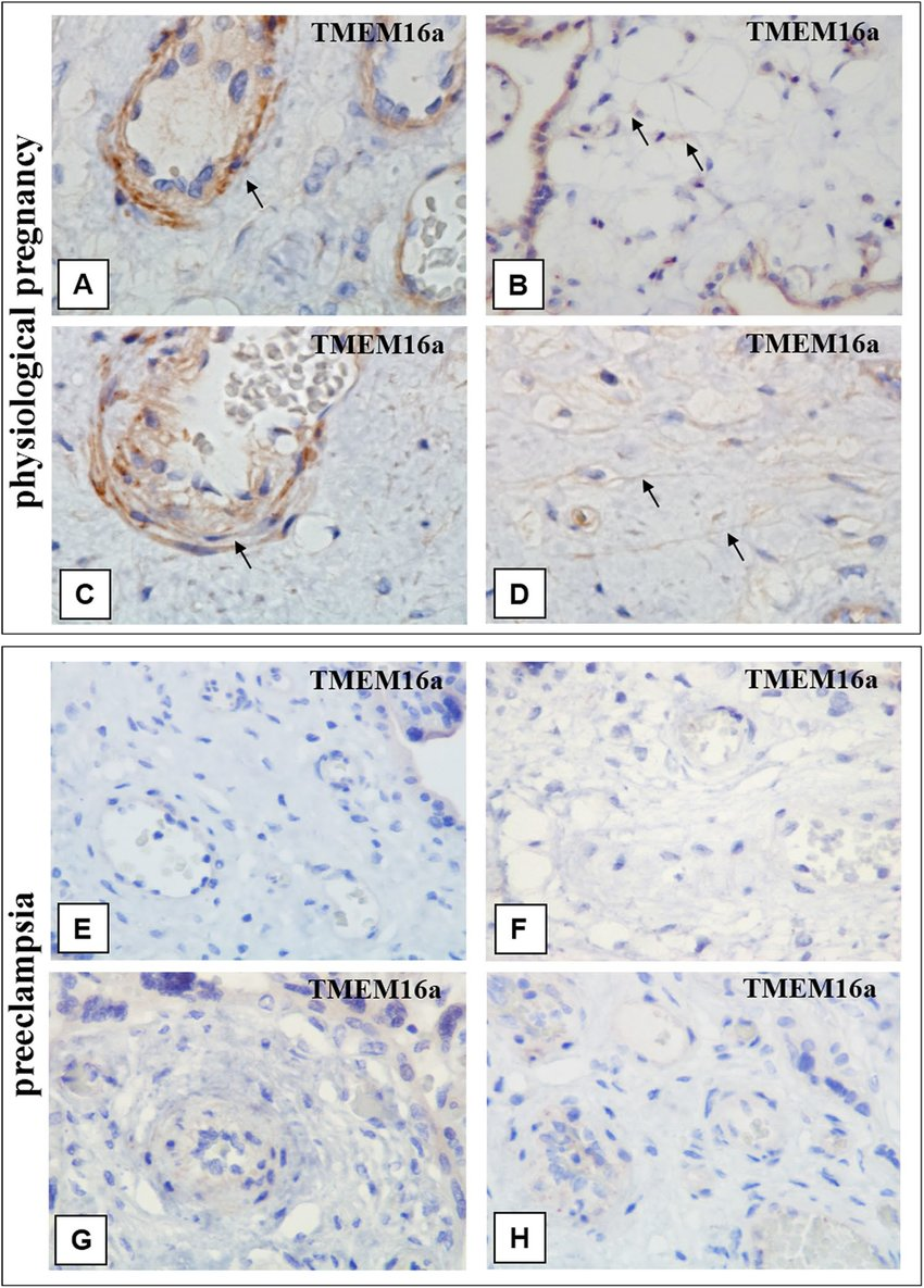 hight resolution of immunohistochemical staining of placental villi with primary antibodies to tmem16a in preeclampsia and physiological pregnancy
