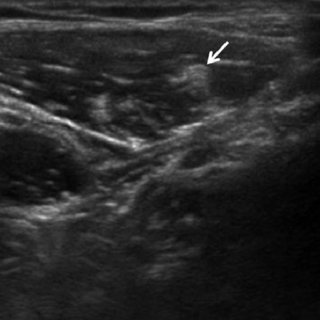 Ultrasound image of the lateral femoral cutaneous nerve ...