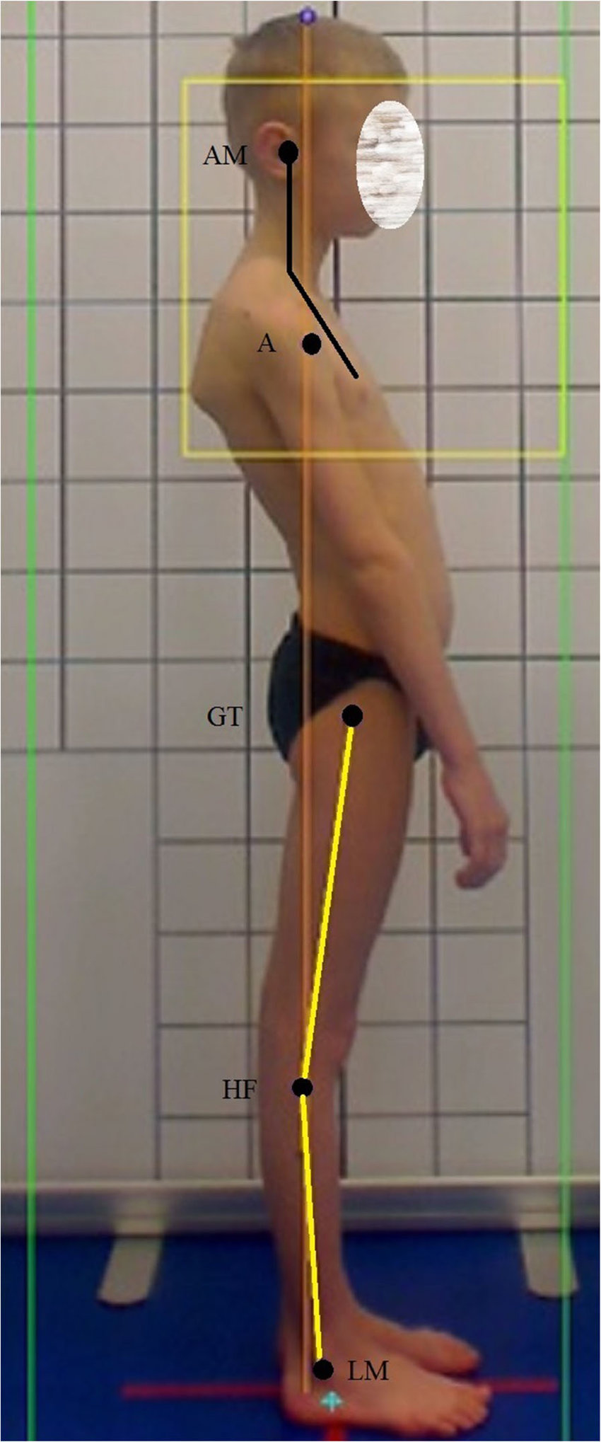 hight resolution of the angle between chest and a head indicates improper head position protraction note