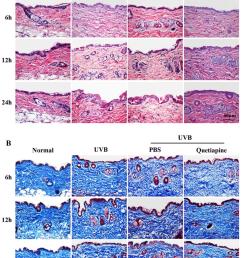 quetiapine protects skin from uvb induced damage in histological level download scientific diagram [ 850 x 1085 Pixel ]